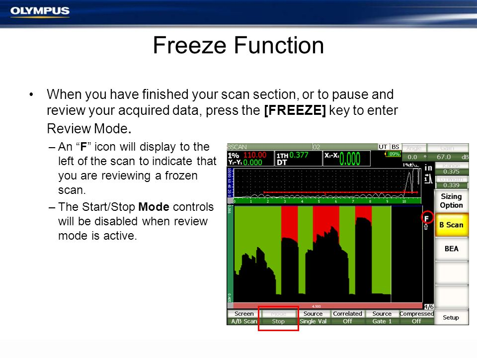 Freeze Function When you have finished your scan section, or to pause and review your acquired data, press the [FREEZE] key to enter Review Mode.